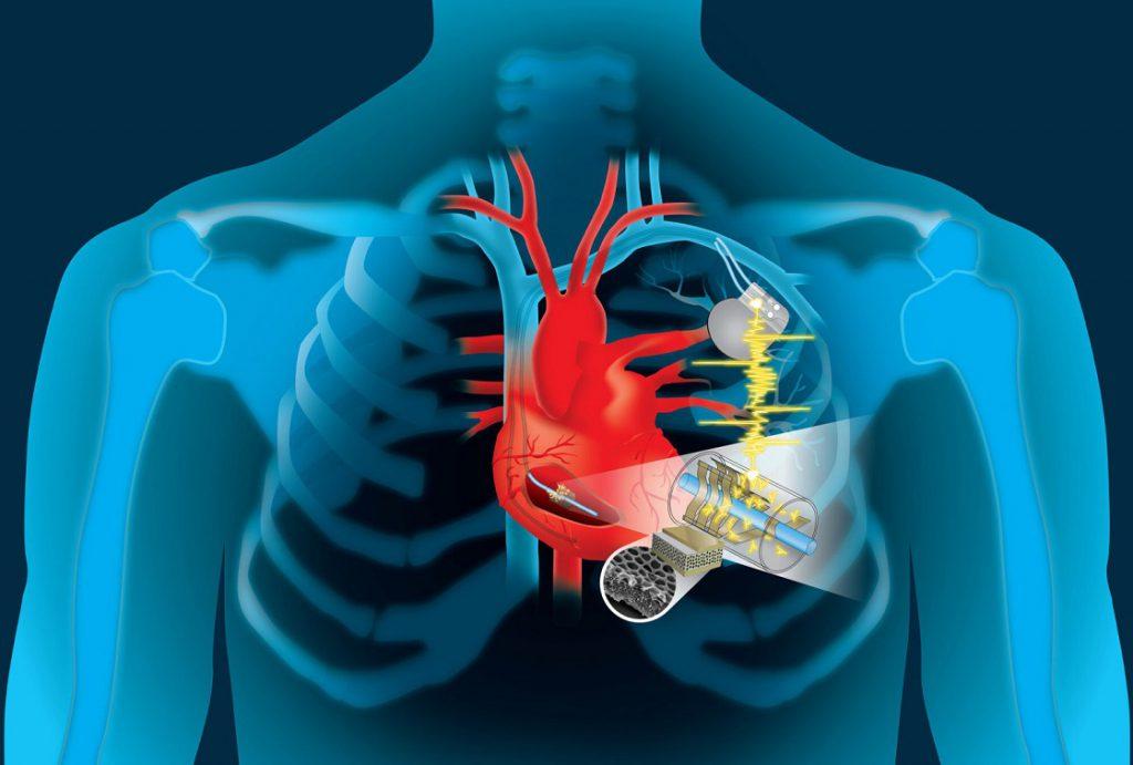 şarj olan kalp pili