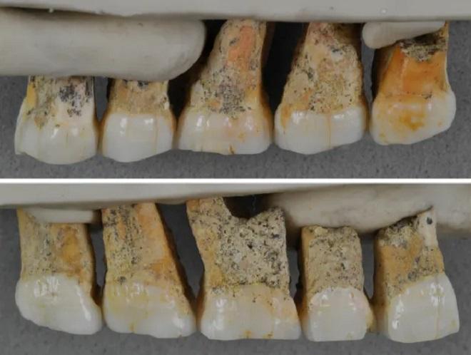 Yeni insan türü dişleri Homo luzonensis