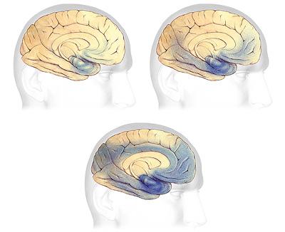 alzheimer hastalığına yol açan plak ve düğümler