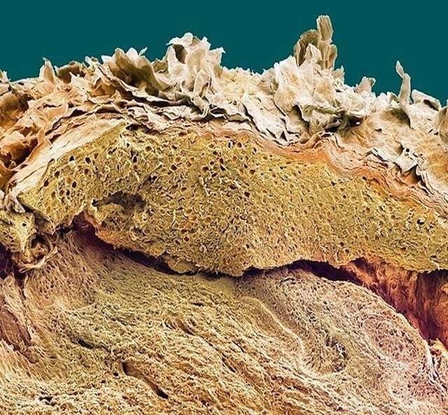 Elektron mikroskobu altında ölü deri hücreleri.